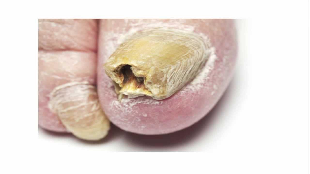 Как да премахнем гъбички по ноктите на краката