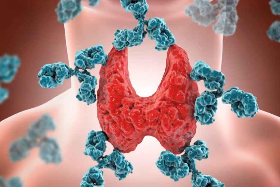Как да излекуваме хашимото и щитовидната жлеза