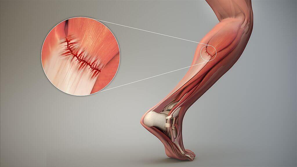Как да се преборим с мускулната треска