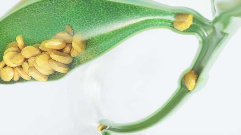 Как да премахнем камъни в жлъчката - лечение с диета и билки
