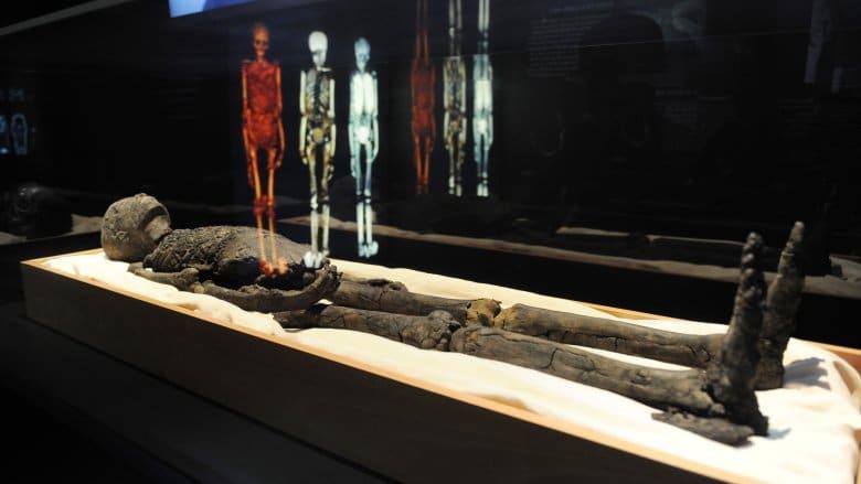 Как е умрял фараонът Тутанкамон